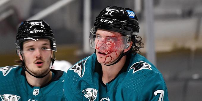 Первая драка Николая Кныжова в НХЛ закончилась поражением и разбитым лицом